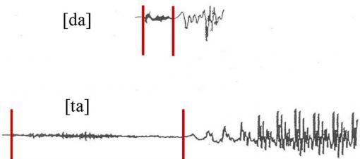 "Ta Da! - The waveforms of two similar sounding syllables ""ta"" and ""da"" allow researchers to make precise time measurements and comparisons of speech production."
