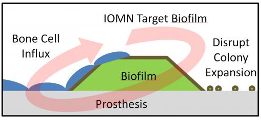 Bacterial assassins - Iron-oxide nanoparticles developed at Brown University target an infected prosthesis, penetrate a bacterial film on the implant's surface and thwart the colony by killing the bacteria. The nanoparticles also are believed to help natural bone cell growth.