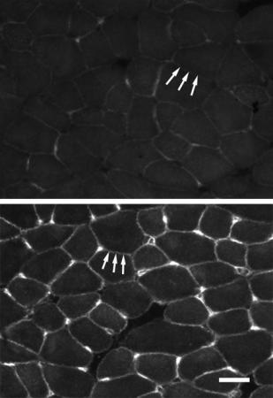 Keeping muscles strong - Muscle cells of untreated mice with muscular dystrophy (top) show little utrophin in cell walls. Muscles of mice treated with biglycan (bottom) have accumulated the protein utrophin.