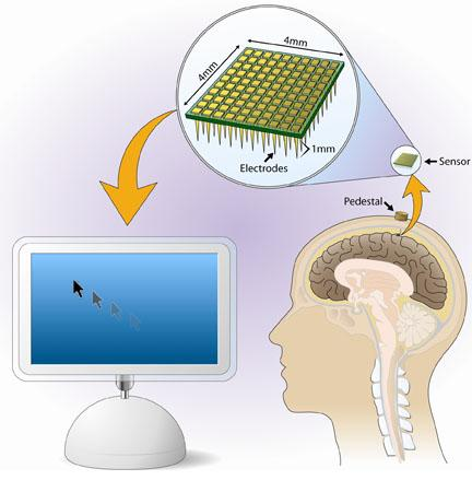 From thought to action - The BrainGate Neural Interface System reads brain signals associated with controling motion, which a computer can translate into instructions for moving a computer cursor or controling a variety of assistive devices.
