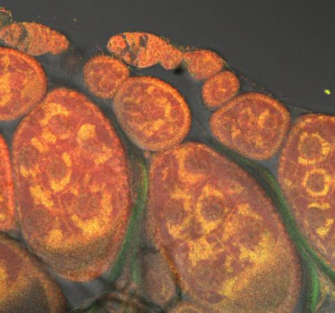 Understanding a genetic double whammy - Bright areas surrounding darker oval nuclei denote the location of  mitochondria in the stained cells of fruit fly ovaries. Brown and  Indiana researchers have traced the genetic and biochemical roots of a  disease that arose in flies from an incompatibility between the nuclear  and mitochondrial genomes.