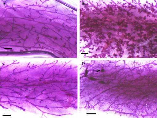 A striking degree of abnormal cell growth - Mammary tissue of control mice (left) and mice exposed as fetuses to 1,000 mg per kg of mother's body weight of MEHP, a common ingredient in plastics. (Black bar is 1 mm.)