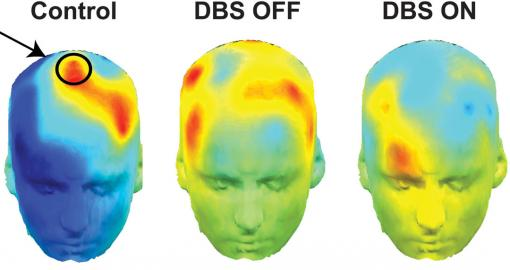 Red is for reflection - The hotter the color, especially in  the circled area, the more likely the brain was to take its time making difficult decisions. Parkinson's patients whose deep brain stimulators were on (right), were more impulsive — a cooler blue.