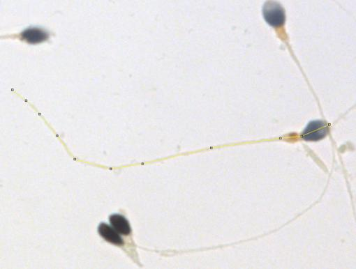 Good swimmers of uniform size - Variations in sperm length, particularly in the tail (flagellum), indicate a lower concentration of sperm that swim well. Researchers apply the segmented line to measure the length of the sperm.