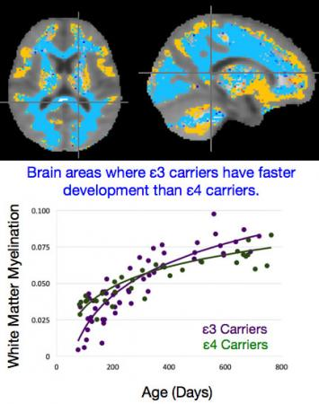 Different areas, different rates of development - The graph plots the trajectory of brain development for children carrying the ε3 and ε4 variants of the APOE gene in areas of the brain where they diverge (blue).
