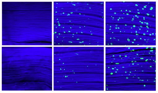 Messy muscle - More protein aggregates, shown as green specks, built up over 1, 3, and 5 weeks (left to right) in the muscle fibers of control flies (top row) compared to those in which dawdle, which hinders their cleanup, was suppressed.