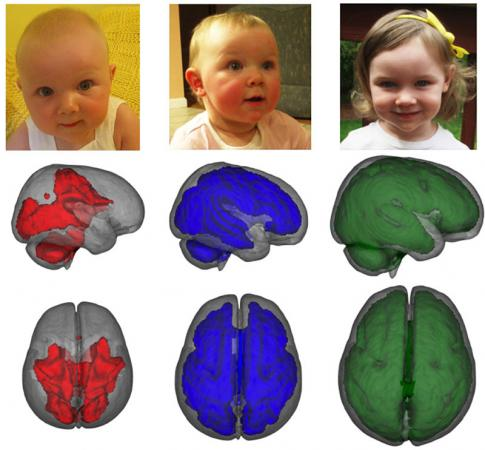 Support for the developing brain - MRI images, taken while children were asleep, showed that infants who were exclusively breastfed for at least three months had enhanced development in key parts of the brain compared to children who were fed formula or a combination of formula and breastmilk. Images show development of myelization by age, left to right.