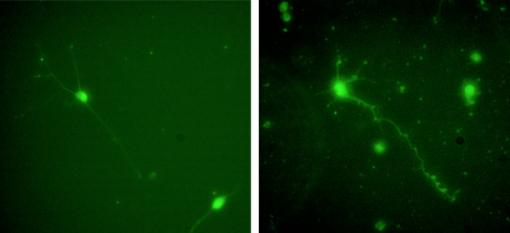 A more dependable scaffold for neural cell culture - Rat central nervous system cells cultured in the apoE4 protein (right) fare better, with more axons and dendrites than cells cultured in laminin (left). Ironically, apoE4 is associated with the neural deficits of Alzheimer's disease in the body.